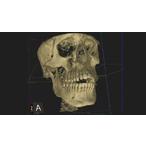 Thumbnail skull image 2